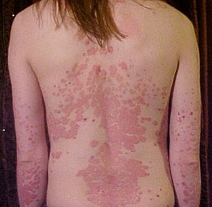 Psoriasis treatment Sydney