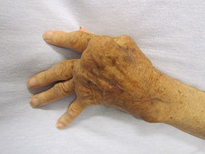 Rheumatoid Arthritis treatment sydney