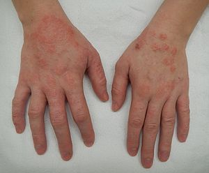 eczema treatment sydney